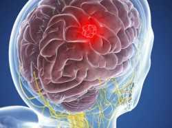 Кавернома головного мозга – что это?