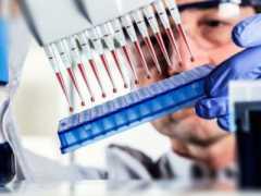 Что означает обнаружение антител igG к токсоплазме у человека