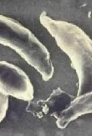 Проведение анализа на токсоплазмоз у кошек
