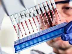 Антитела igg к токсокарам: что это такое и как лечить?
