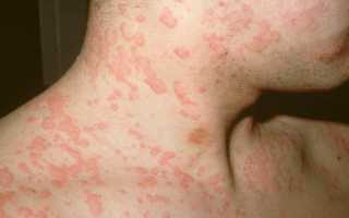 Могут ли глисты вызвать аллергию у детей и взрослых: взаимосвязь, симптомы и лечение