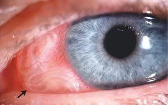 Токсокара у дорослих: симптоми і лікування » журнал здоров'я iHealth 1
