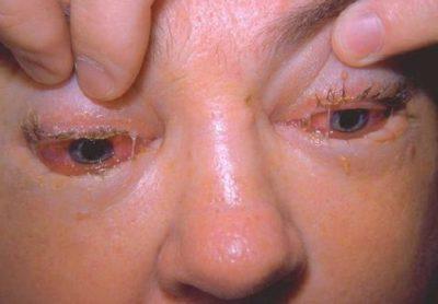 Какие симптомы трихинеллеза у человека