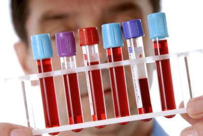 Какой анализ крови показывает наличие паразитов