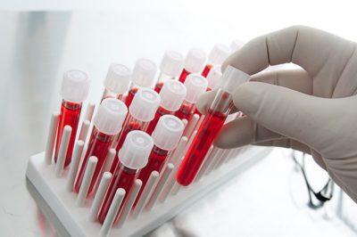 Анализ крови на лямблии у детей