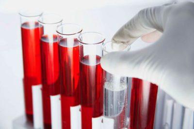 Кров на глисти - як називається? » журнал здоров'я iHealth
