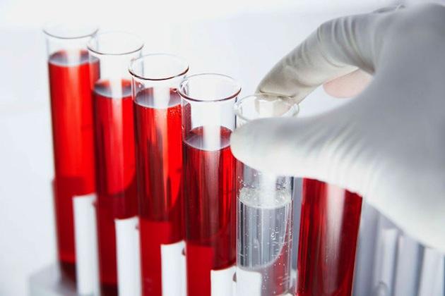 Кровь на гельминты и основные показания к данному исследованию