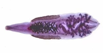 глисты в морской рыбе опасные для человека
