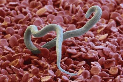 заражение паразитами симптомы лечение