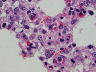 Анализ на токсоплазмоз: как сдавать анализ крови? нормы и расшифровка анализа