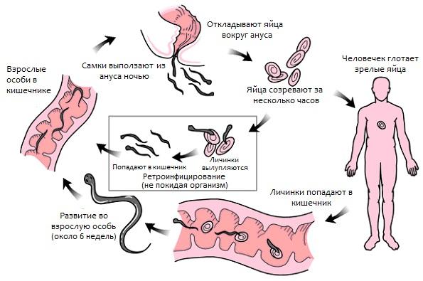 mozhet-li-zhit-parazit-vokrug-analnogo-otverstiya