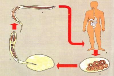 Все признаки и симптомы анкилостомоза у человека