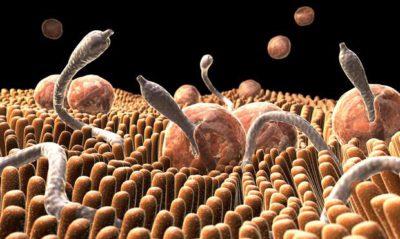 Чи можна заразитися опісторхозу від людини? » журнал здоров'я iHealth 2