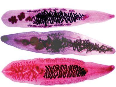 печеночные паразиты у человека симптомы