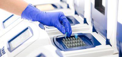 Как сдается анализ на токсоплазмоз при беременности?