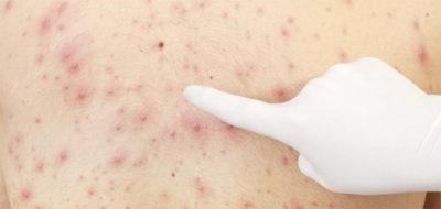 Сыпь от глистов: симптомы и лечение в домашних условиях