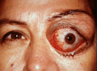 Паразити в очах людини: симптоми » журнал здоров'я iHealth 2