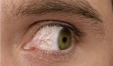 Паразиты в глазах у человека: симптомы и лечение в домашних условиях