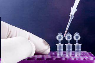 Как сдавать анализ на токсоплазмоз и расшифровка результатов