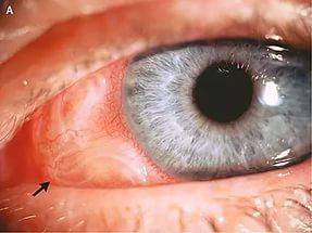 глисты в глазах у человека лечение фото