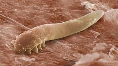 Локализация и разновидности факультативных паразитов, что это и как происходит заражение